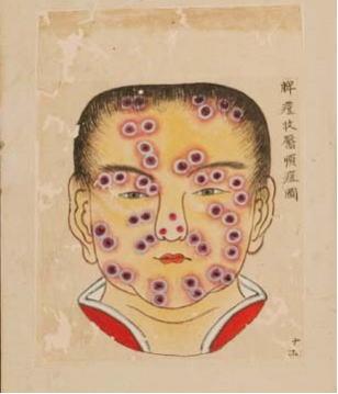 疫病 平安 時代